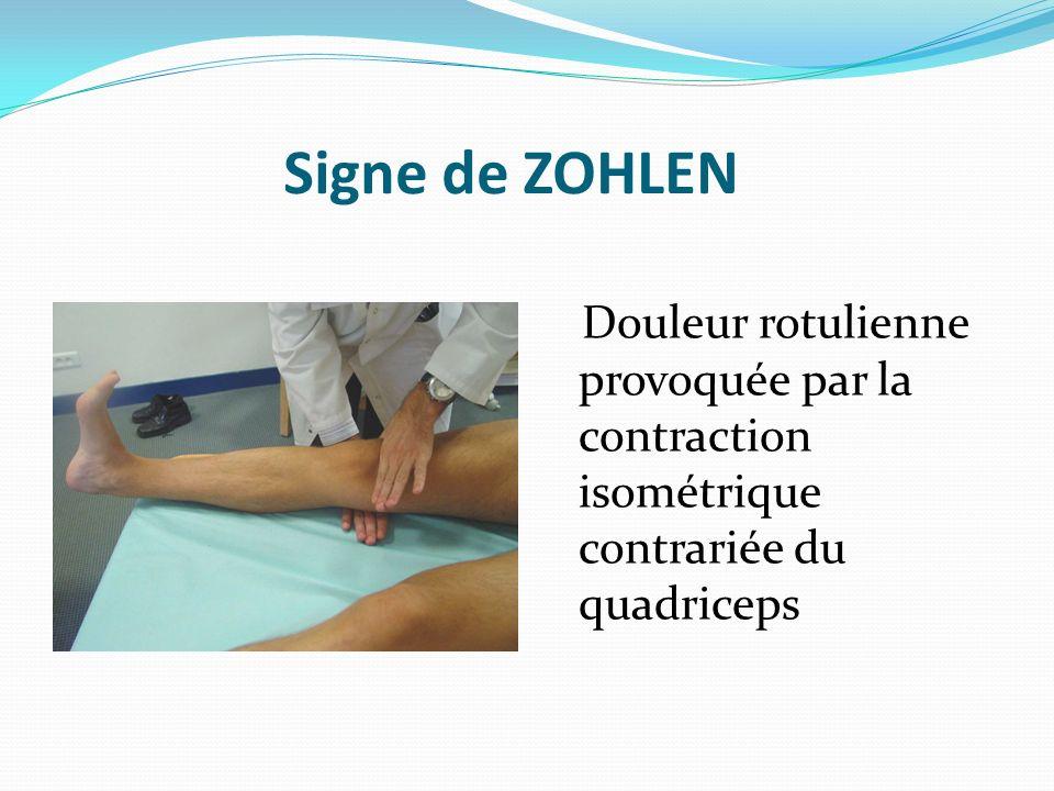 Signe de ZOHLEN Douleur rotulienne provoquée par la contraction isométrique contrariée du quadriceps.