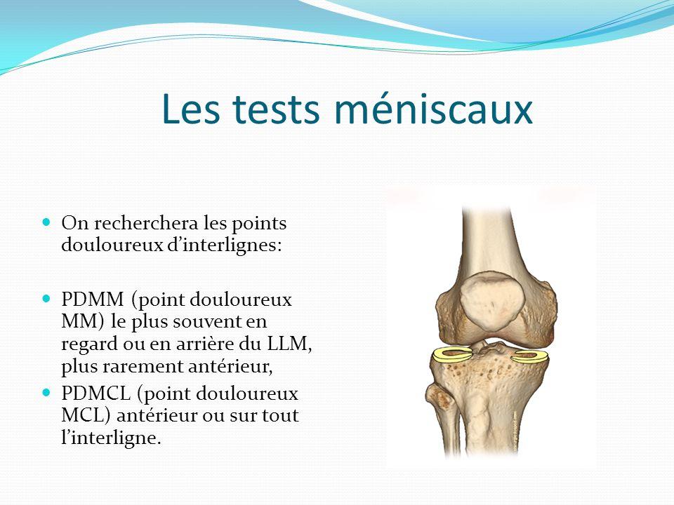 Les tests méniscaux On recherchera les points douloureux d'interlignes: