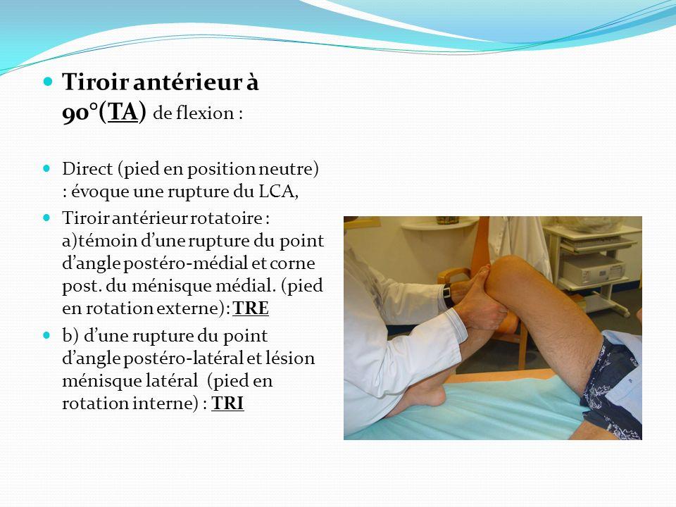 Tiroir antérieur à 90°(TA) de flexion :