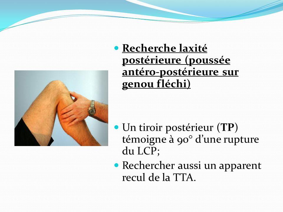 Recherche laxité postérieure (poussée antéro-postérieure sur genou fléchi)