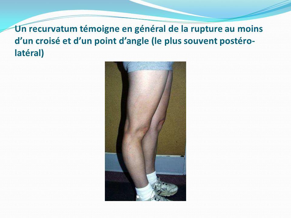 Un recurvatum témoigne en général de la rupture au moins d'un croisé et d'un point d'angle (le plus souvent postéro-latéral)