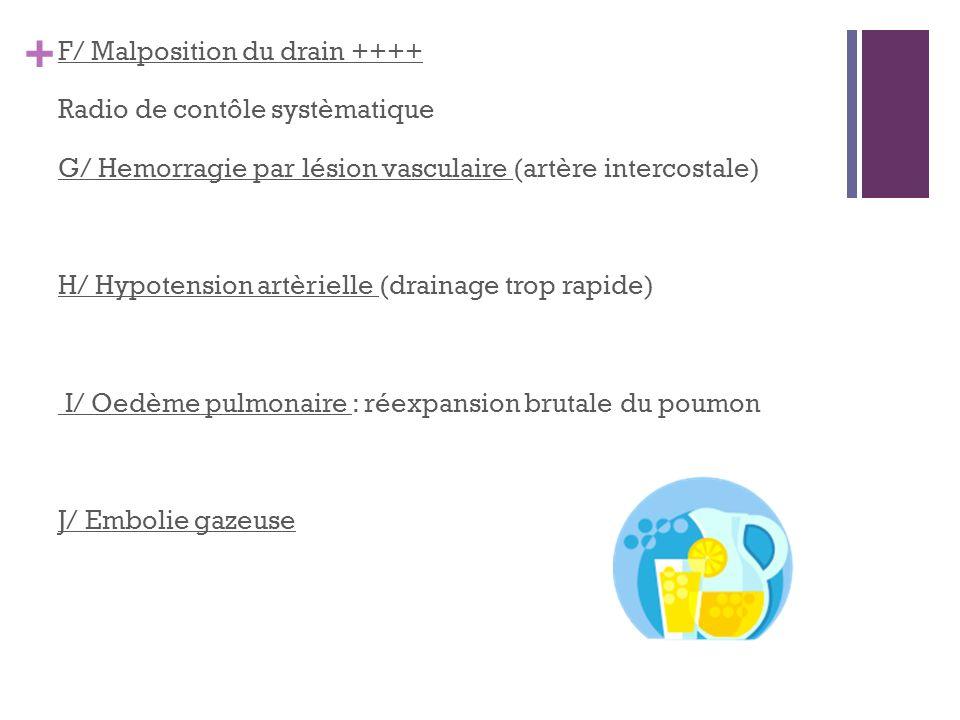 F/ Malposition du drain ++++ Radio de contôle systèmatique G/ Hemorragie par lésion vasculaire (artère intercostale) H/ Hypotension artèrielle (drainage trop rapide) I/ Oedème pulmonaire : réexpansion brutale du poumon J/ Embolie gazeuse