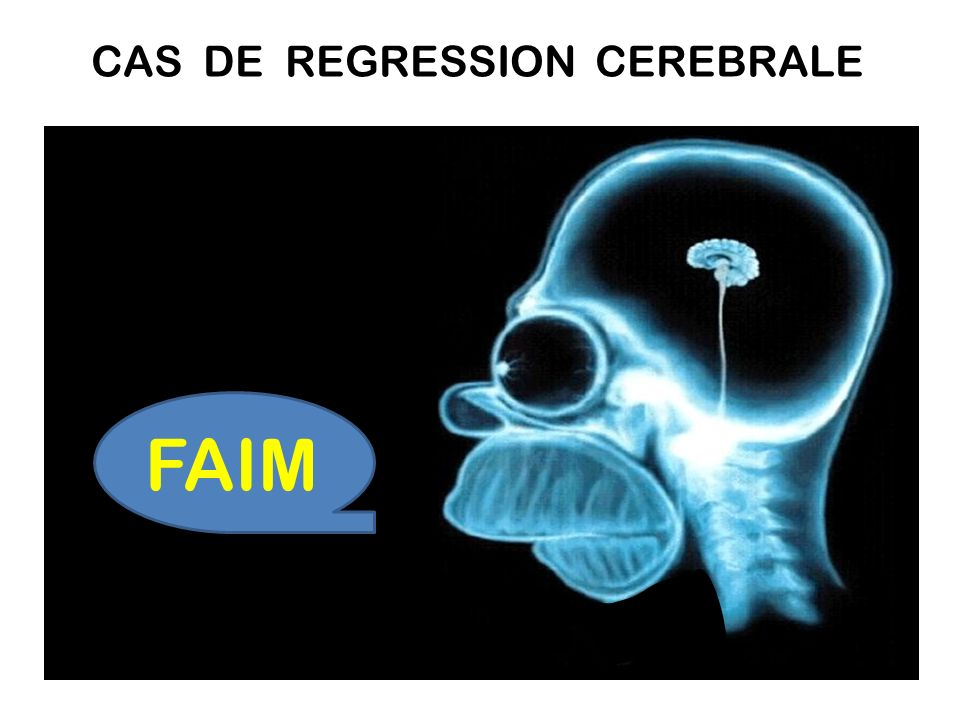CAS DE REGRESSION CEREBRALE