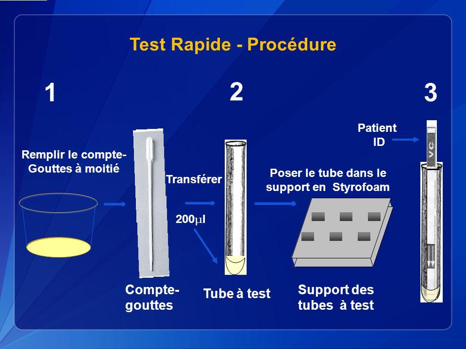 Test Rapide - Procédure