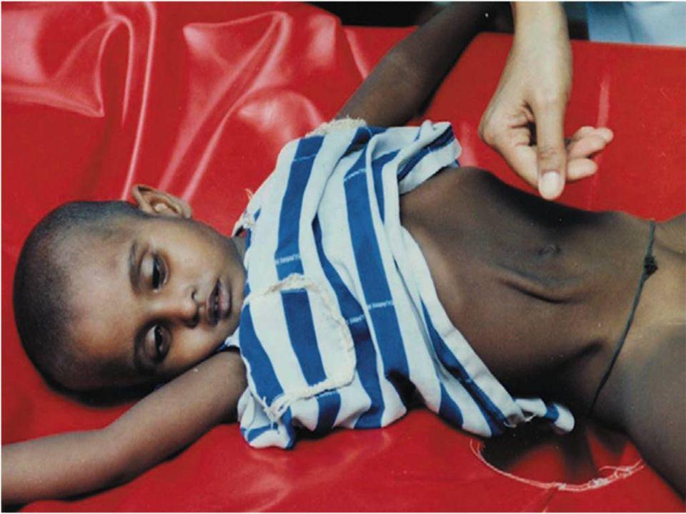Cet enfant est sévèrement déshydraté comme le montrent ses yeux enfoncés, son abdomen scaphoïde et son pli cutané persistant.