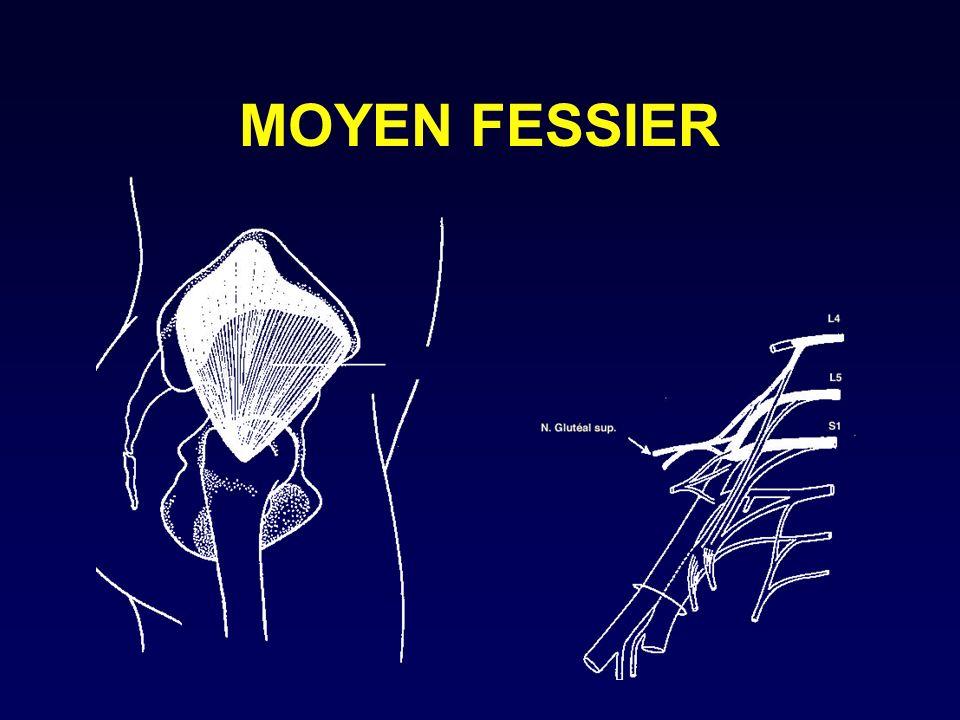MOYEN FESSIER