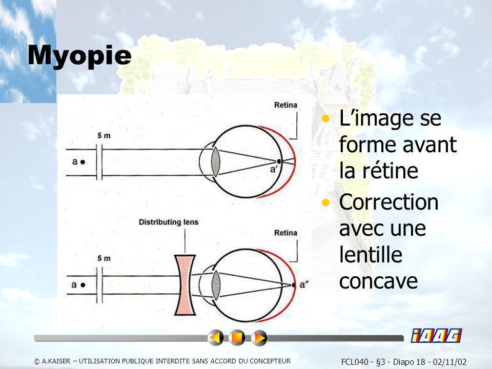 Myopie L'image se forme avant la rétine
