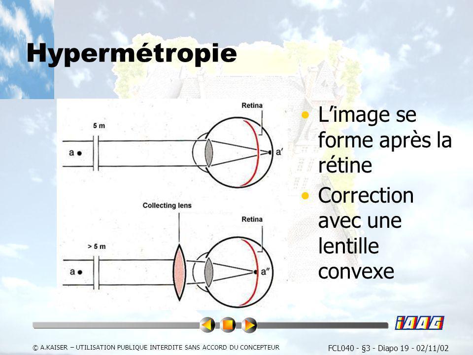 Hypermétropie L'image se forme après la rétine