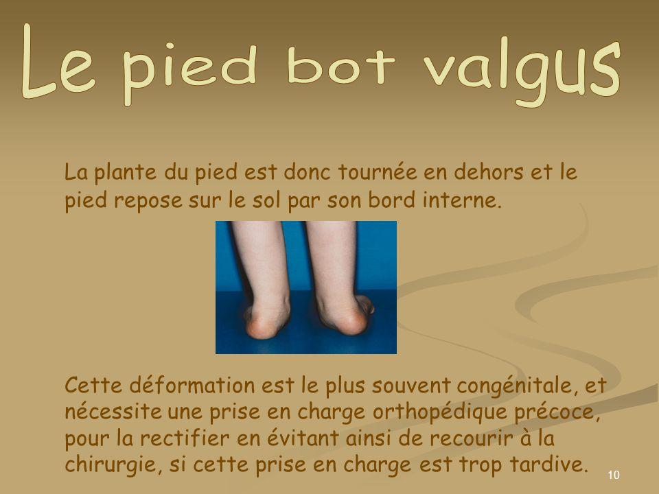 Le pied bot valgus La plante du pied est donc tournée en dehors et le pied repose sur le sol par son bord interne.