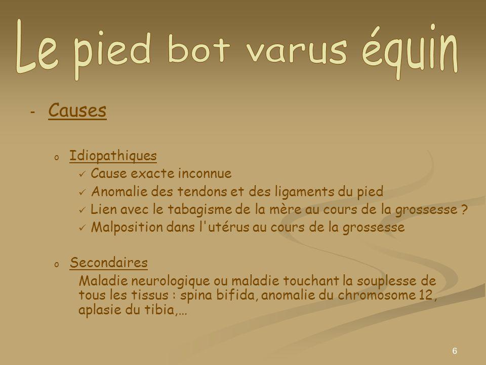 Le pied bot varus équin Causes Idiopathiques Cause exacte inconnue