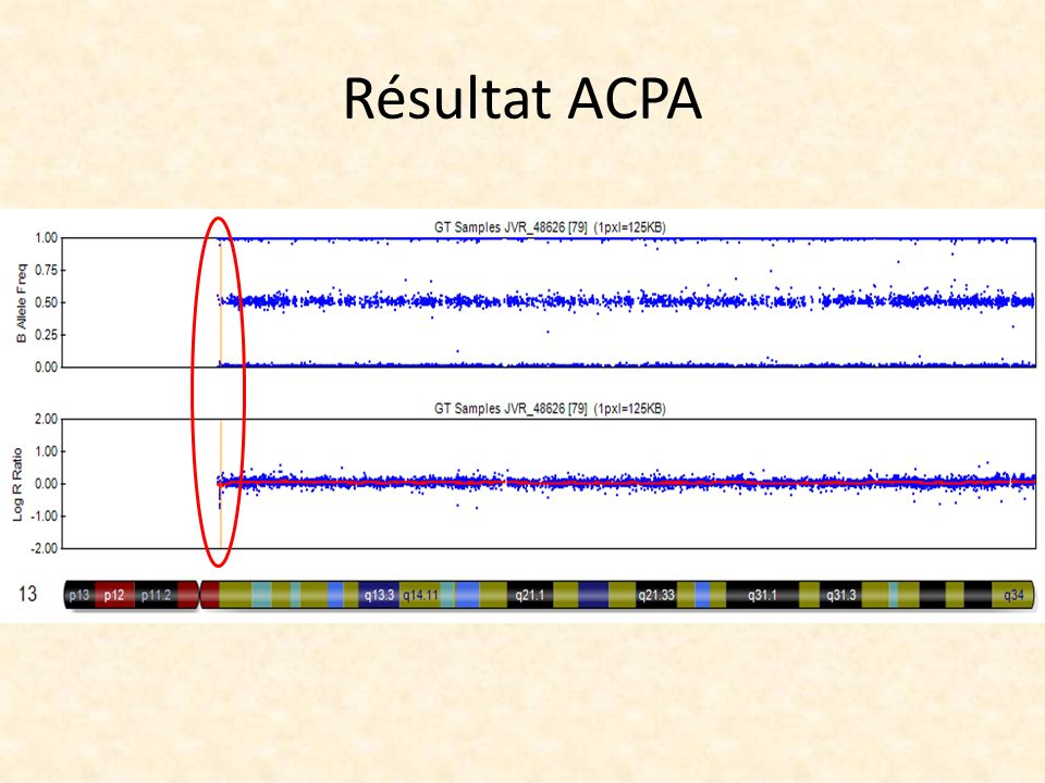 Résultat ACPA