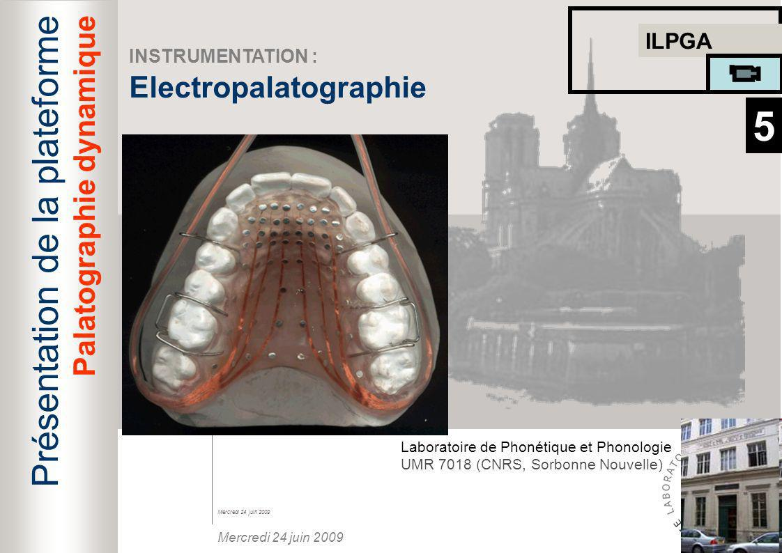 5 Présentation de la plateforme Electropalatographie