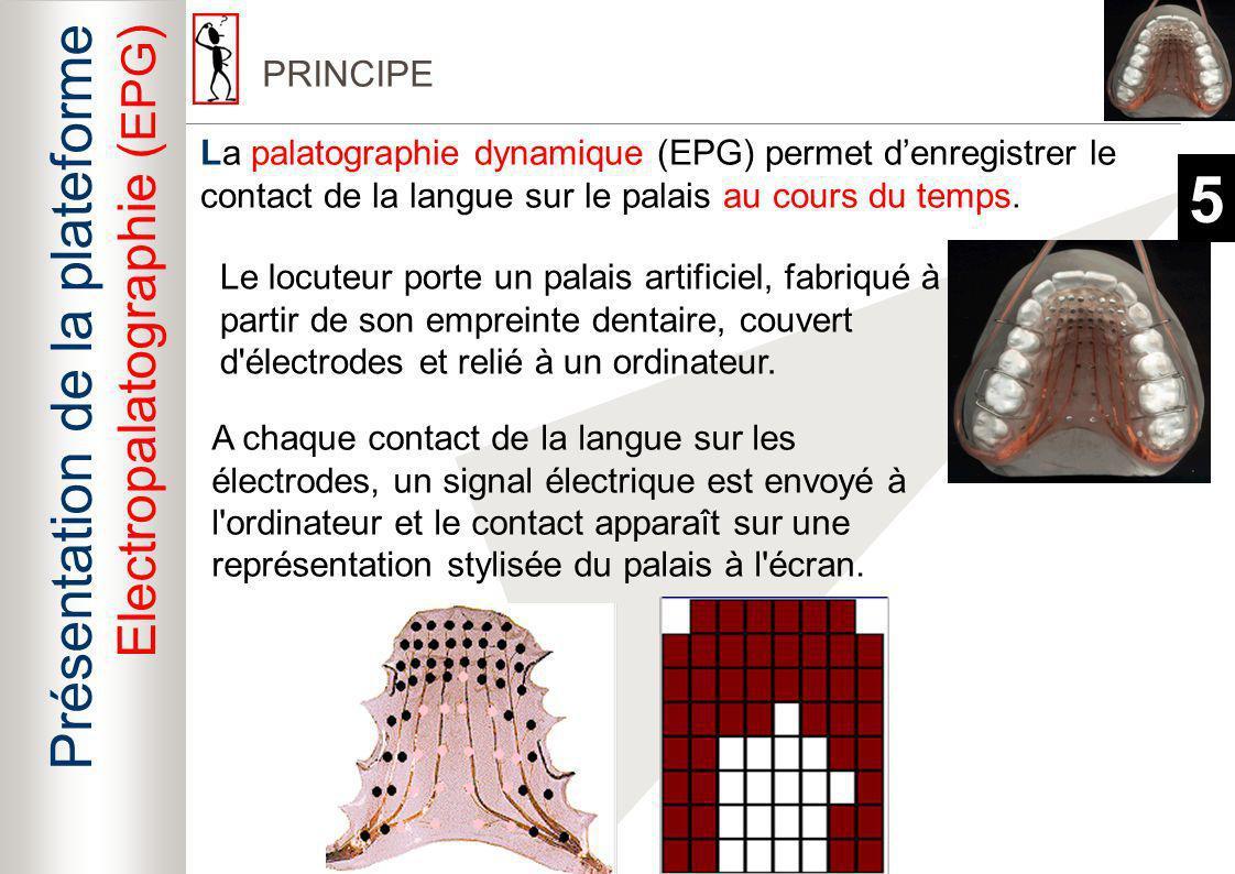 5 Présentation de la plateforme Electropalatographie (EPG) BILAN