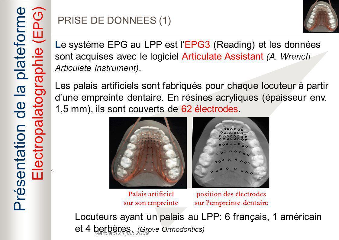 position des électrodes sur l'empreinte dentaire