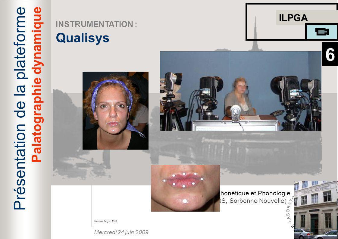 6 Présentation de la plateforme Qualisys Palatographie dynamique