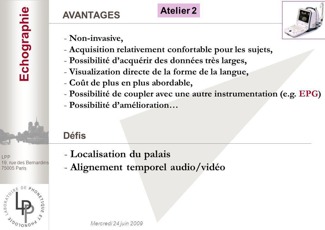 Echographie Localisation du palais Alignement temporel audio/vidéo