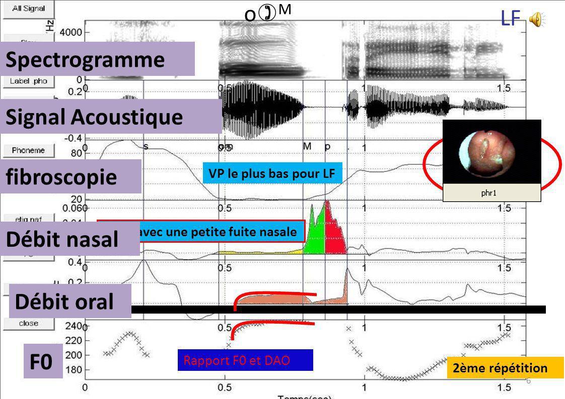 oM LF Spectrogramme Signal Acoustique fibroscopie Débit nasal