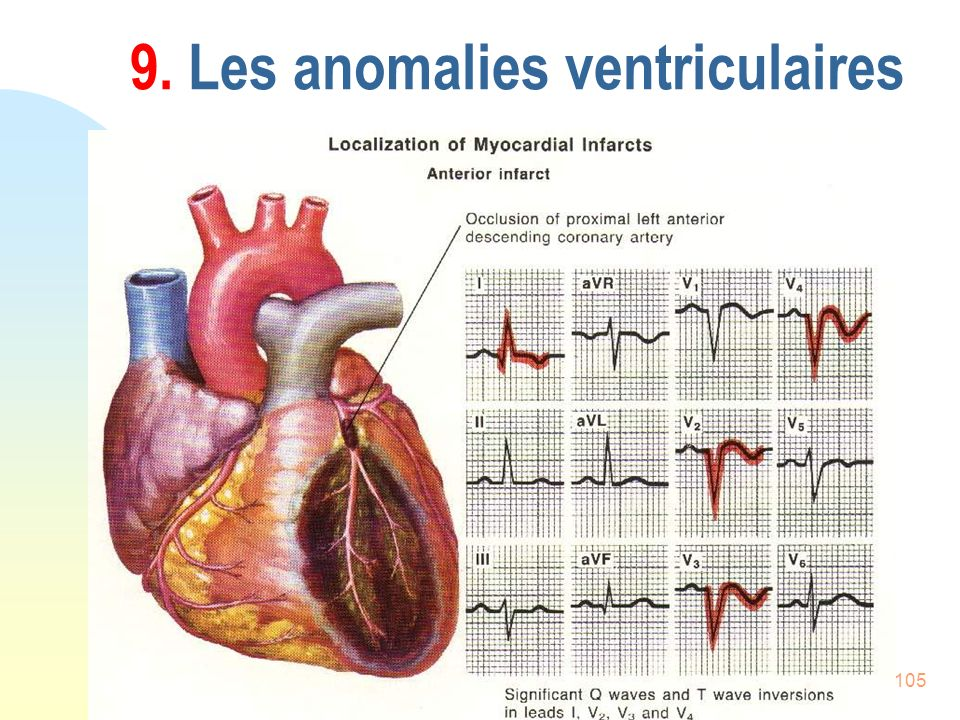 9. Les anomalies ventriculaires