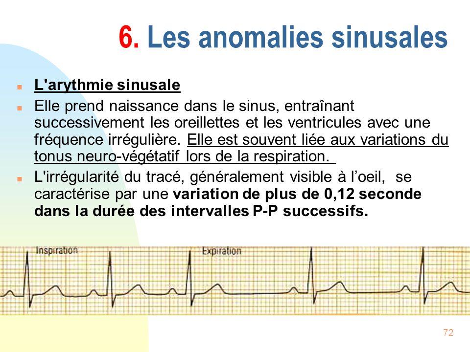 6. Les anomalies sinusales