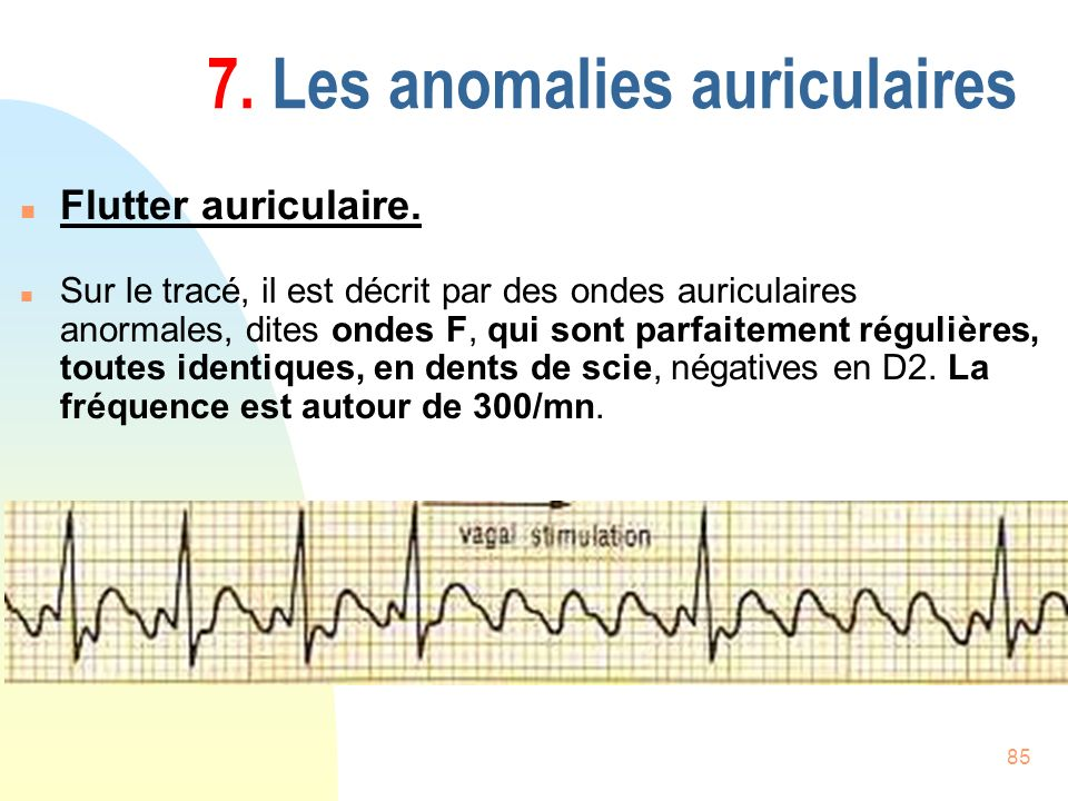 7. Les anomalies auriculaires