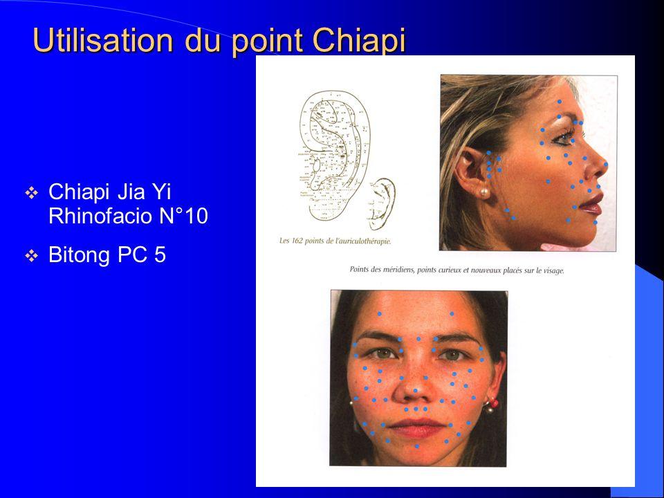 Utilisation du point Chiapi