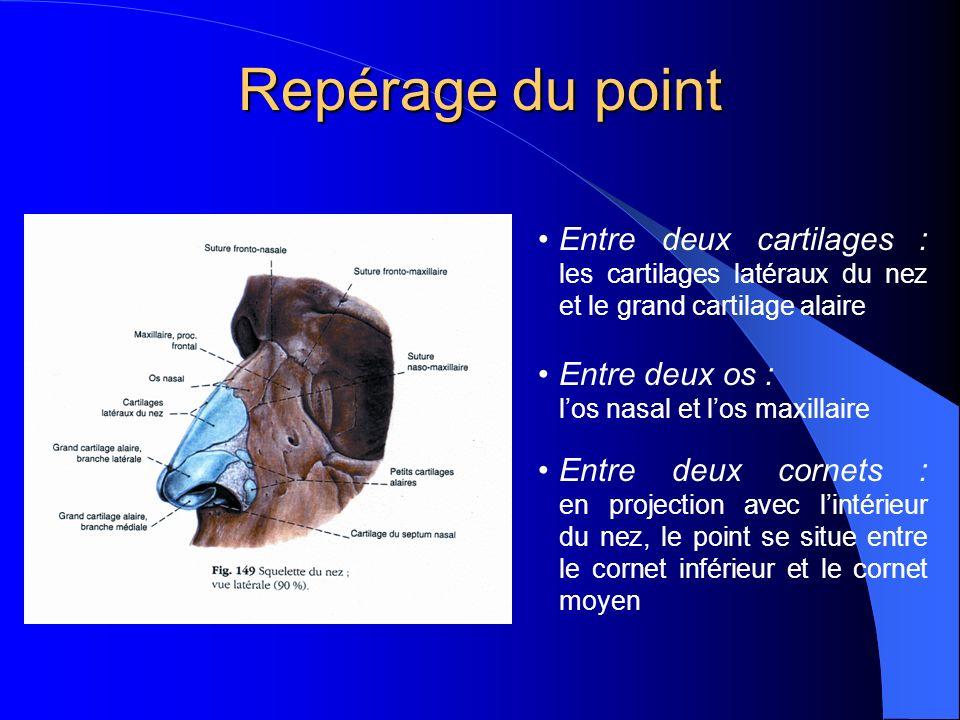 Repérage du point Entre deux cartilages : les cartilages latéraux du nez et le grand cartilage alaire.