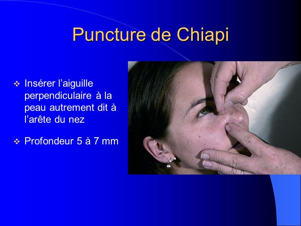 Puncture de Chiapi Insérer l'aiguille perpendiculaire à la peau autrement dit à l'arête du nez.