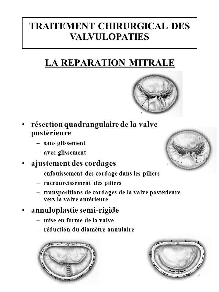 LA REPARATION MITRALE résection quadrangulaire de la valve postérieure