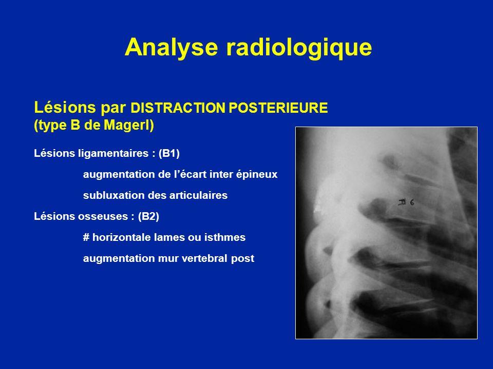 Analyse radiologique Lésions par DISTRACTION POSTERIEURE