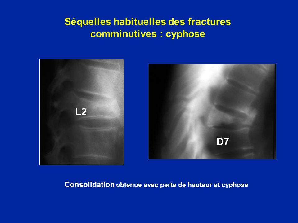 Séquelles habituelles des fractures comminutives : cyphose
