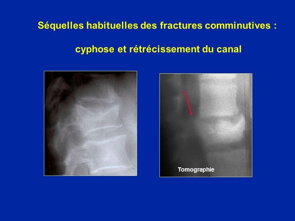 Séquelles habituelles des fractures comminutives : cyphose et rétrécissement du canal