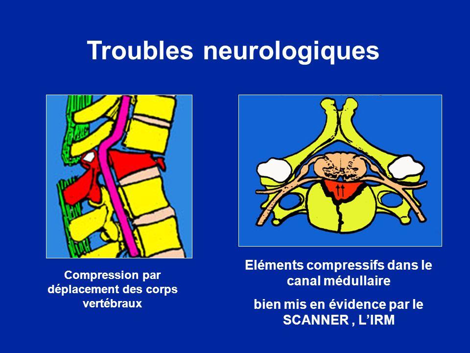 Troubles neurologiques