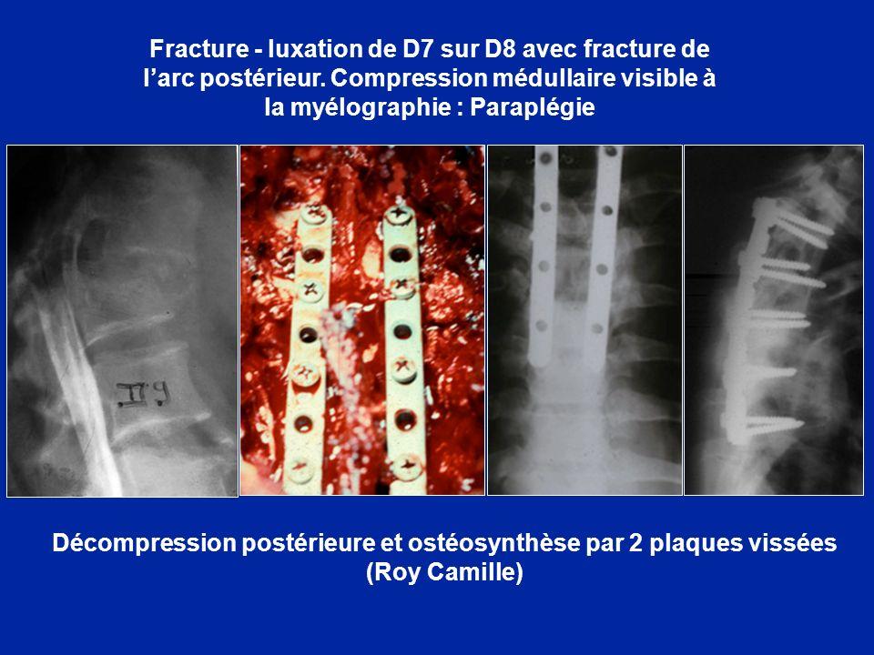 Fracture - luxation de D7 sur D8 avec fracture de l'arc postérieur