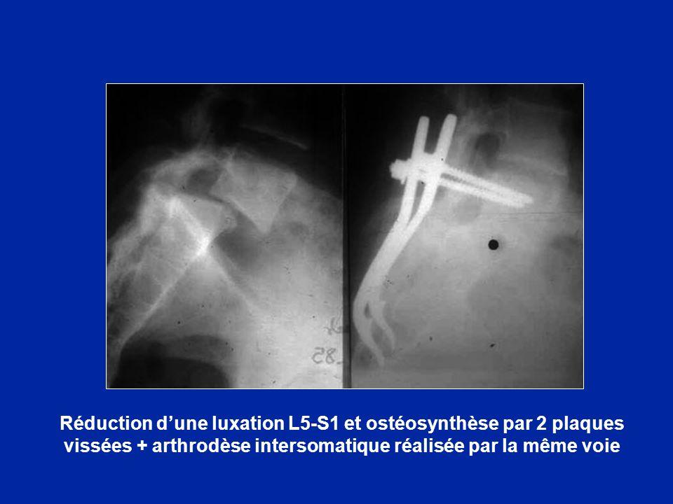 Réduction d'une luxation L5-S1 et ostéosynthèse par 2 plaques vissées + arthrodèse intersomatique réalisée par la même voie
