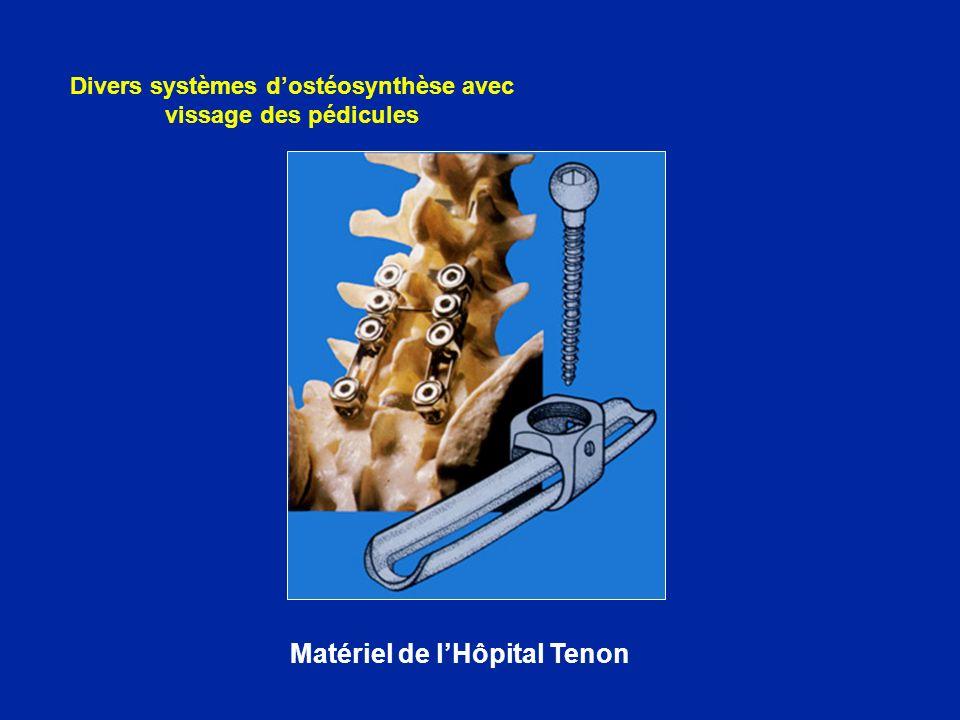 Divers systèmes d'ostéosynthèse avec vissage des pédicules