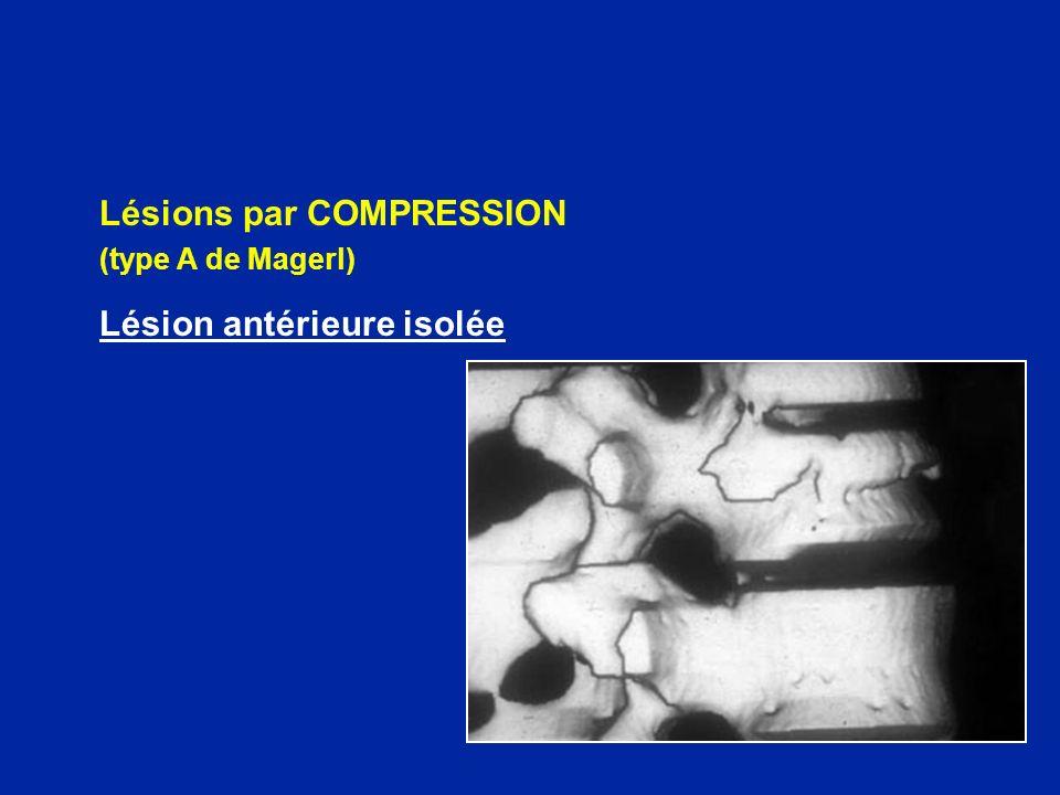 Lésions par COMPRESSION Lésion antérieure isolée