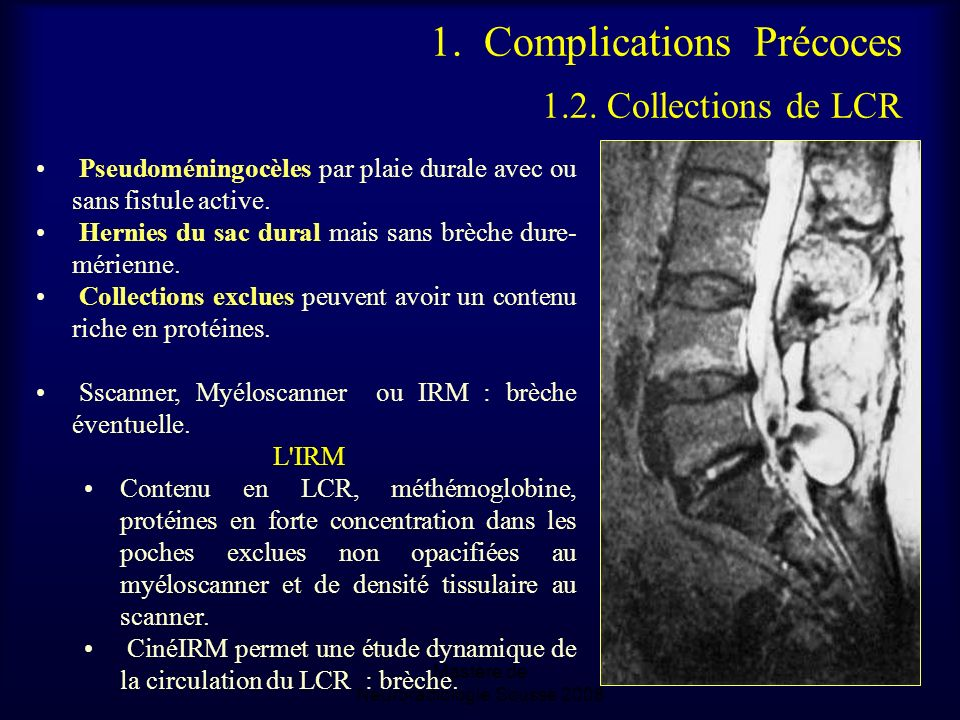 1. Complications Précoces 1.2. Collections de LCR