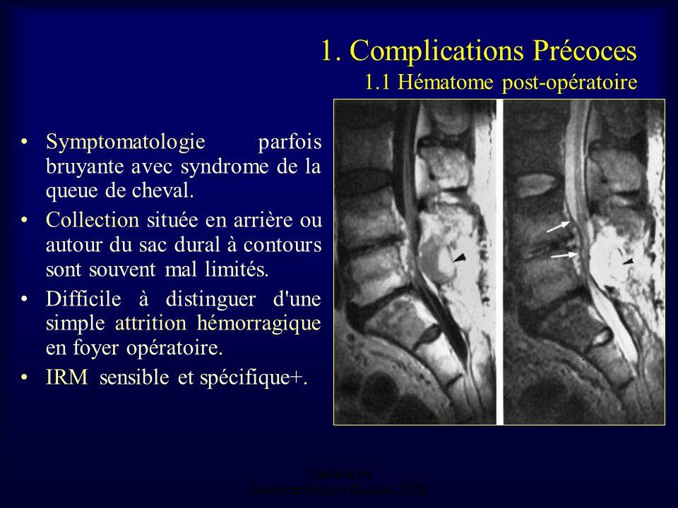1. Complications Précoces 1.1 Hématome post-opératoire