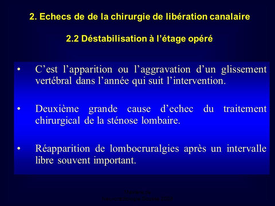 2. Echecs de de la chirurgie de libération canalaire