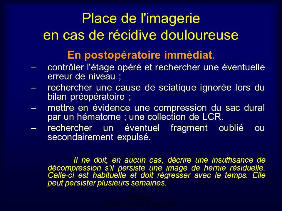Place de l imagerie en cas de récidive douloureuse