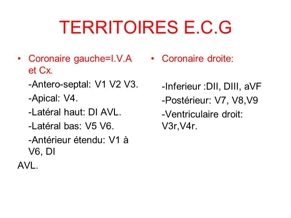 TERRITOIRES E.C.G Coronaire gauche=I.V.A et Cx.