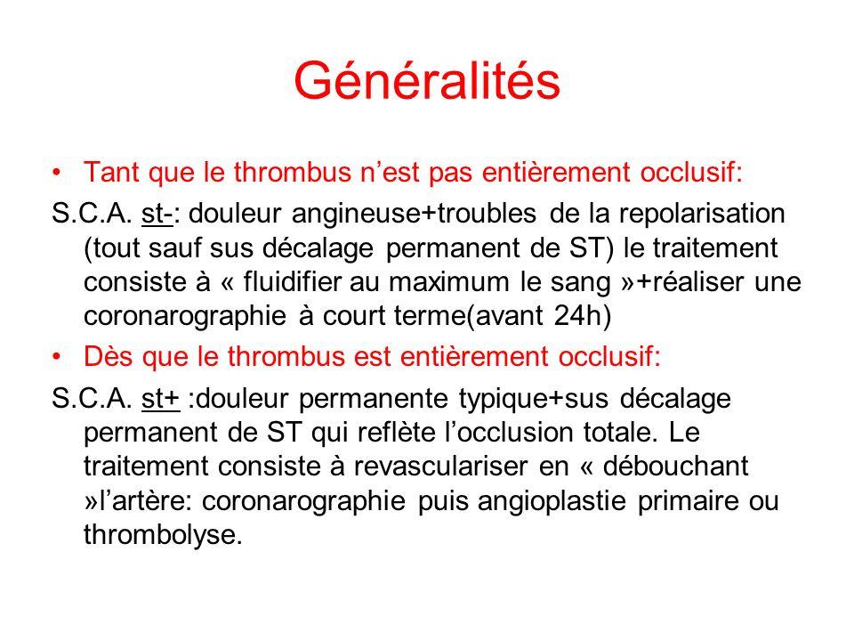 Généralités Tant que le thrombus n'est pas entièrement occlusif: