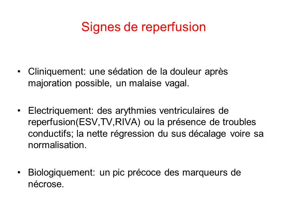 Signes de reperfusion Cliniquement: une sédation de la douleur après majoration possible, un malaise vagal.