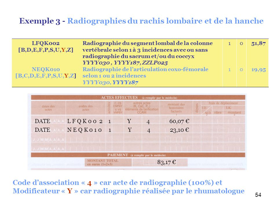 Exemple 3 - Radiographies du rachis lombaire et de la hanche
