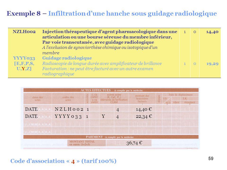 Exemple 8 – Infiltration d'une hanche sous guidage radiologique