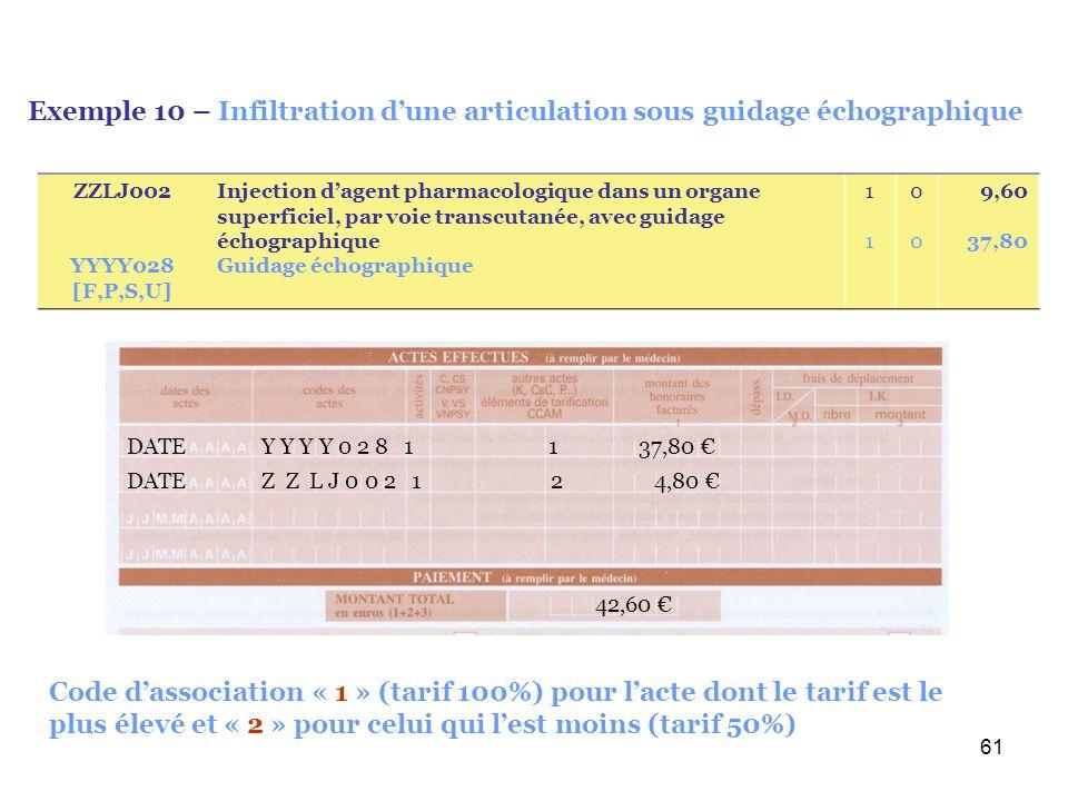 Exemple 10 – Infiltration d'une articulation sous guidage échographique
