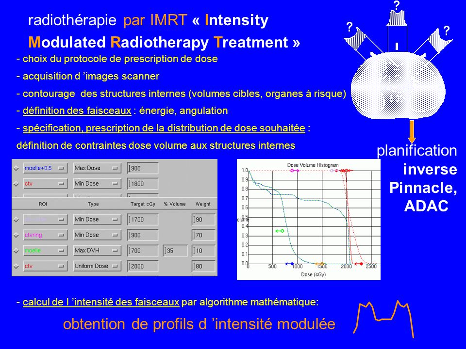 radiothérapie par IMRT « Intensity Modulated Radiotherapy Treatment »