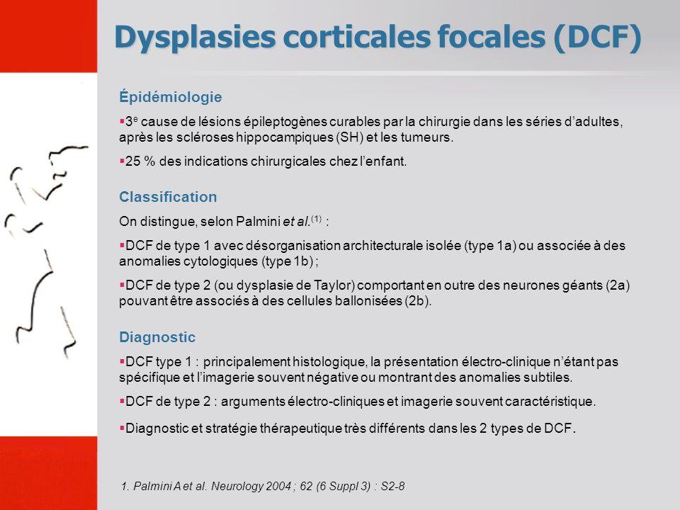 Dysplasies corticales focales (DCF)