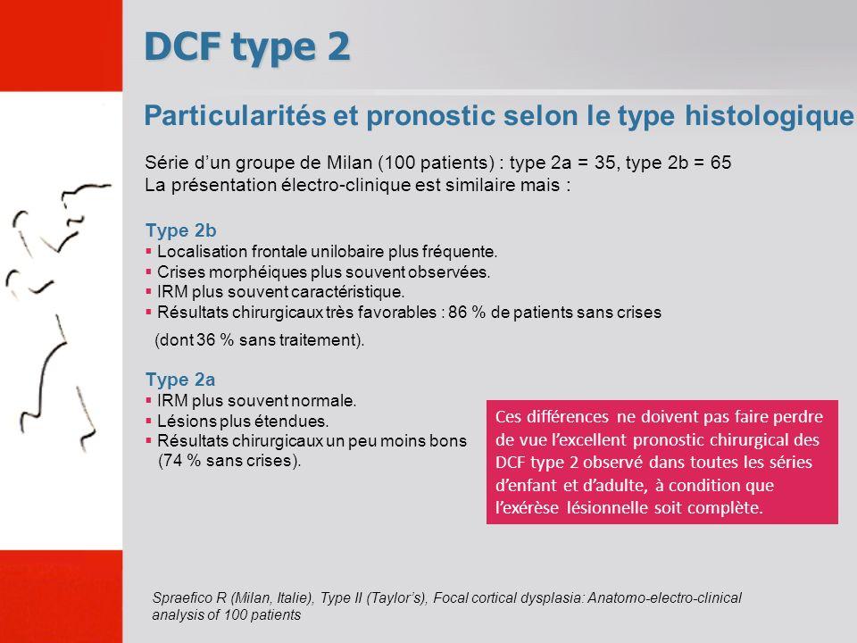 DCF type 2 Particularités et pronostic selon le type histologique