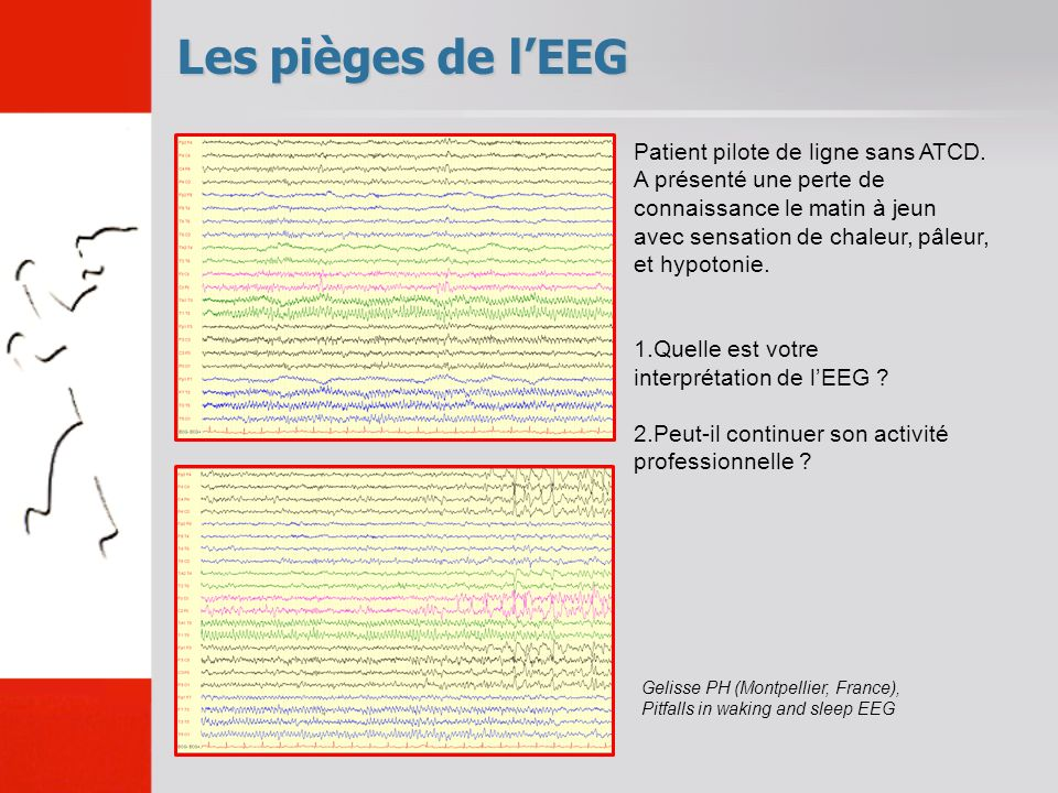 Les pièges de l'EEG Patient pilote de ligne sans ATCD.